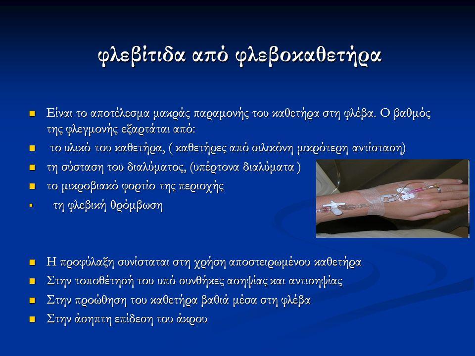 φλεβίτιδα από φλεβοκαθετήρα φλεβίτιδα από φλεβοκαθετήρα Είναι το αποτέλεσμα μακράς παραμονής του καθετήρα στη φλέβα. Ο βαθμός της φλεγμονής εξαρτάται