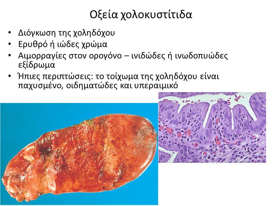 Οξεία χολοκυστίτιδα Διόγκωση της χοληδόχου Ερυθρό ή ιώδες χρώμα Αιμορραγίες στον ορογόνο – ινιδώδες ή ινωδοπυώδες εξίδρωμα Ήπιες περιπτώσεις: το τοίχωμα της χοληδόχου είναι παχυσμένο, οιδηματώδες και υπεραιμικό