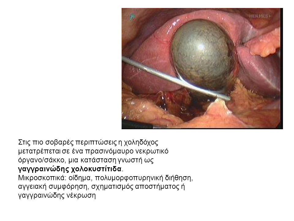 Στις πιο σοβαρές περιπτώσεις η χοληδόχος μετατρέπεται σε ένα πρασινόμαυρο νεκρωτικό όργανο/σάκκο, μια κατάσταση γνωστή ως γαγγραινώδης χολοκυστίτιδα.
