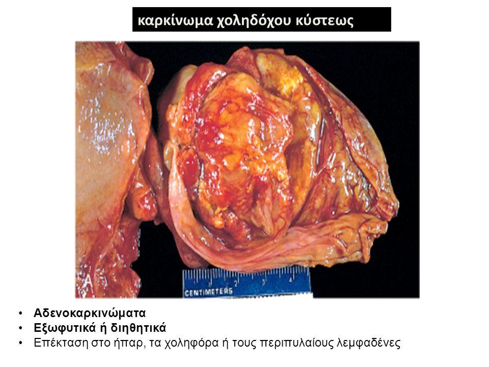 καρκίνωμα χοληδόχου κύστεως Αδενοκαρκινώματα Εξωφυτικά ή διηθητικά Επέκταση στο ήπαρ, τα χοληφόρα ή τους περιπυλαίους λεμφαδένες