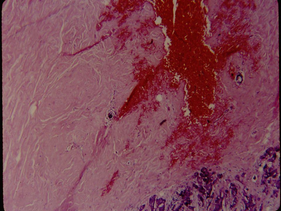 Καρκίνωμα Μαστού Το καρκίνωμα του μαστού επεκτείνεται κατά συνέχεια ιστών, λεμφογενώς κι αιματογενώς Η πρόγνωσίς του εξαρτάται κυρίως από το στάδιο Η σταδιοποίησις βασίζεται στο μέγεθος του όγκου, στην παρουσία λεμφαδενικών μεταστάσεων, εκτεταμένης τοπικά νόσου κι αιματογενούς διασποράς,