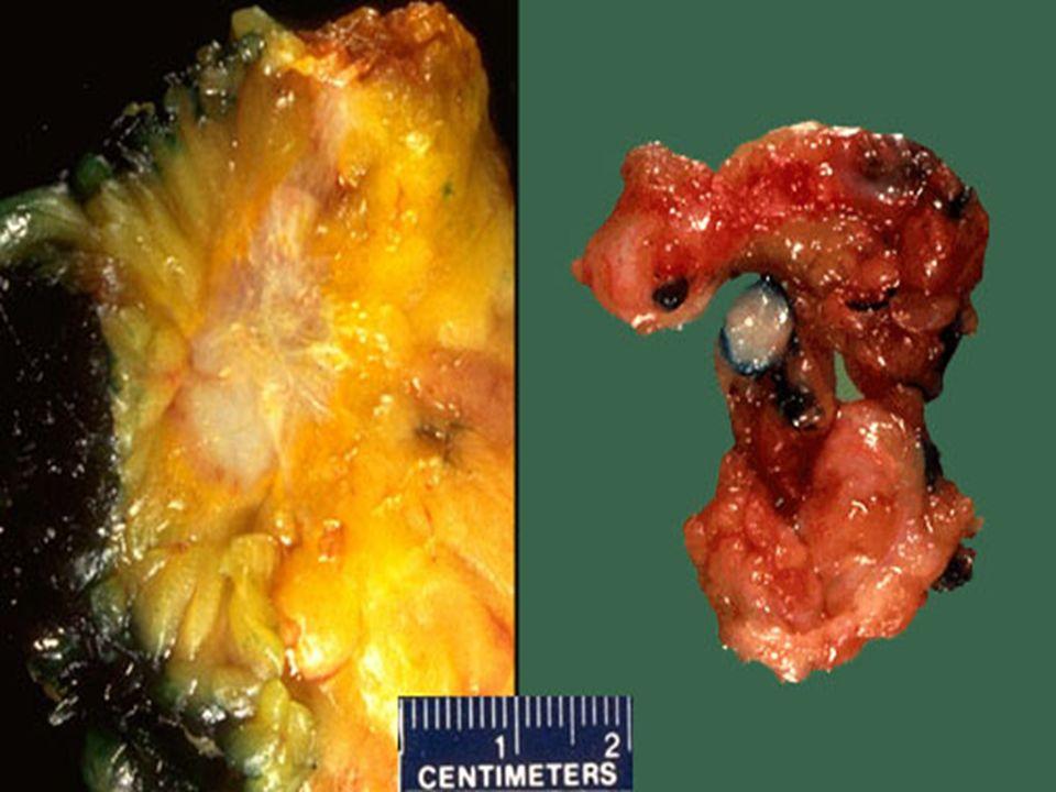 ΜΑΣΤΟΣ 1 η Περίπτωσις Γυναίκα, 45 ετών με ογκίδιο μαστού Αυξομειώνεται σε μέγεθος.