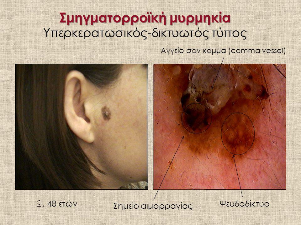Σμηγματορροϊκή μυρμηκία Σμηγματορροϊκή μυρμηκία Υπερκερατωσικός-δικτυωτός τύπος ♀, 48 ετώνΨευδοδίκτυο Σημείο αιμορραγίας Αγγείο σαν κόμμα (comma vessel)