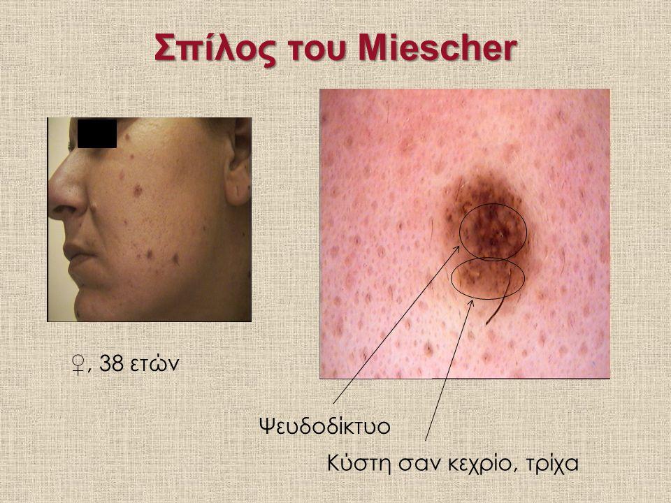 Σπίλος του Miescher ♀, 38 ετών Ψευδοδίκτυο Κύστη σαν κεχρίο, τρίχα
