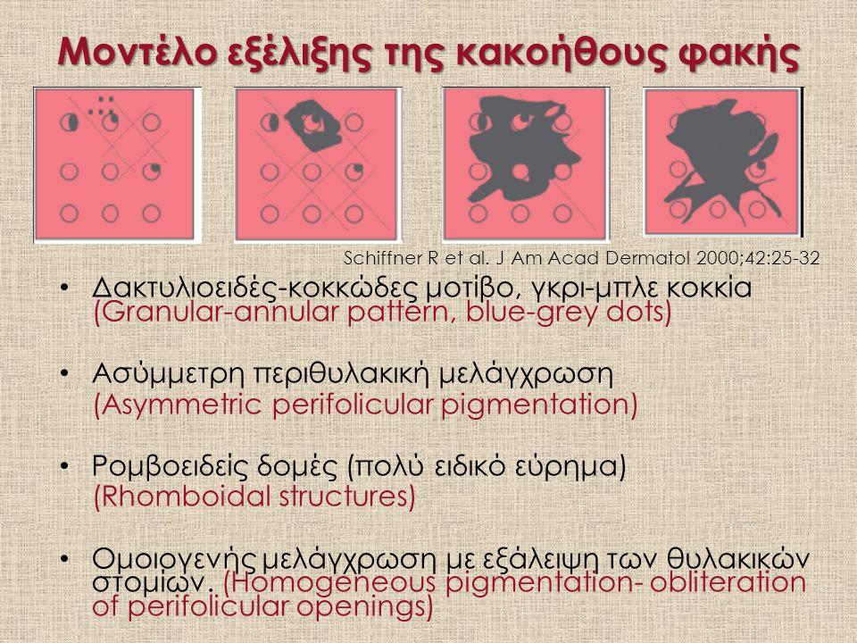 Μοντέλο εξέλιξης της κακοήθους φακής Δακτυλιοειδές-κοκκώδες μοτίβο, γκρι-μπλε κοκκία (Granular-annular pattern, blue-grey dots) Ασύμμετρη περιθυλακική μελάγχρωση (Asymmetric perifolicular pigmentation) Ρομβοειδείς δομές (πολύ ειδικό εύρημα) (Rhomboidal structures) Ομοιογενής μελάγχρωση με εξάλειψη των θυλακικών στομίων.