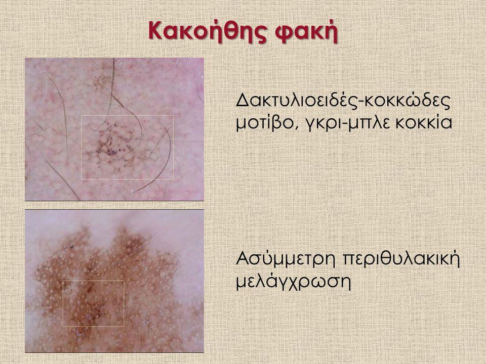 Κακοήθης φακή Δακτυλιοειδές-κοκκώδες μοτίβο, γκρι-μπλε κοκκία Ασύμμετρη περιθυλακική μελάγχρωση