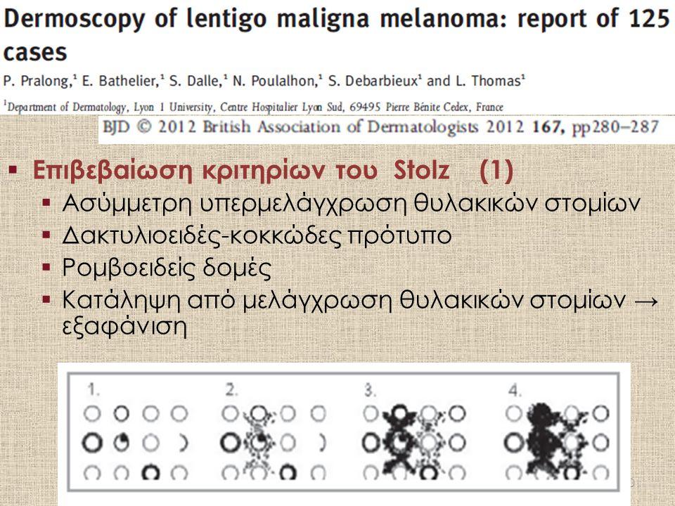  Επιβεβαίωση κριτηρίων του Stolz(1)  Ασύμμετρη υπερμελάγχρωση θυλακικών στομίων  Δακτυλιοειδές-κοκκώδες πρότυπο  Ρομβοειδείς δομές  Κατάληψη από μελάγχρωση θυλακικών στομίων → εξαφάνιση 30