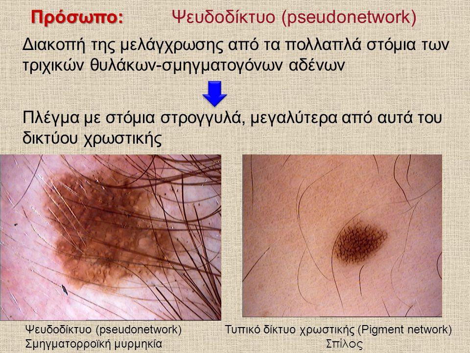 Πρόσωπο: Πρόσωπο:Ψευδοδίκτυο (pseudonetwork) Διακοπή της μελάγχρωσης από τα πολλαπλά στόμια των τριχικών θυλάκων-σμηγματογόνων αδένων Πλέγμα με στόμια στρογγυλά, μεγαλύτερα από αυτά του δικτύου χρωστικής Ψευδοδίκτυο (pseudonetwork) Σμηγματορροϊκή μυρμηκία Τυπικό δίκτυο χρωστικής (Pigment network) Σπίλος