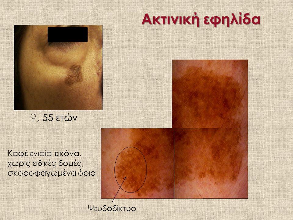 Ακτινική εφηλίδα ♀, 55 ετών Ψευδοδίκτυο Καφέ ενιαία εικόνα, χωρίς ειδικές δομές, σκοροφαγωμένα όρια