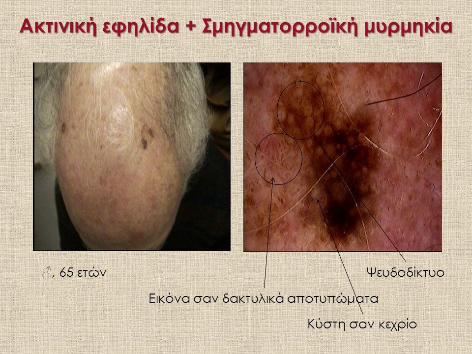 Ακτινική εφηλίδα + Σμηγματορροϊκή μυρμηκία ♂, 65 ετώνΨευδοδίκτυο Εικόνα σαν δακτυλικά αποτυπώματα Κύστη σαν κεχρίο
