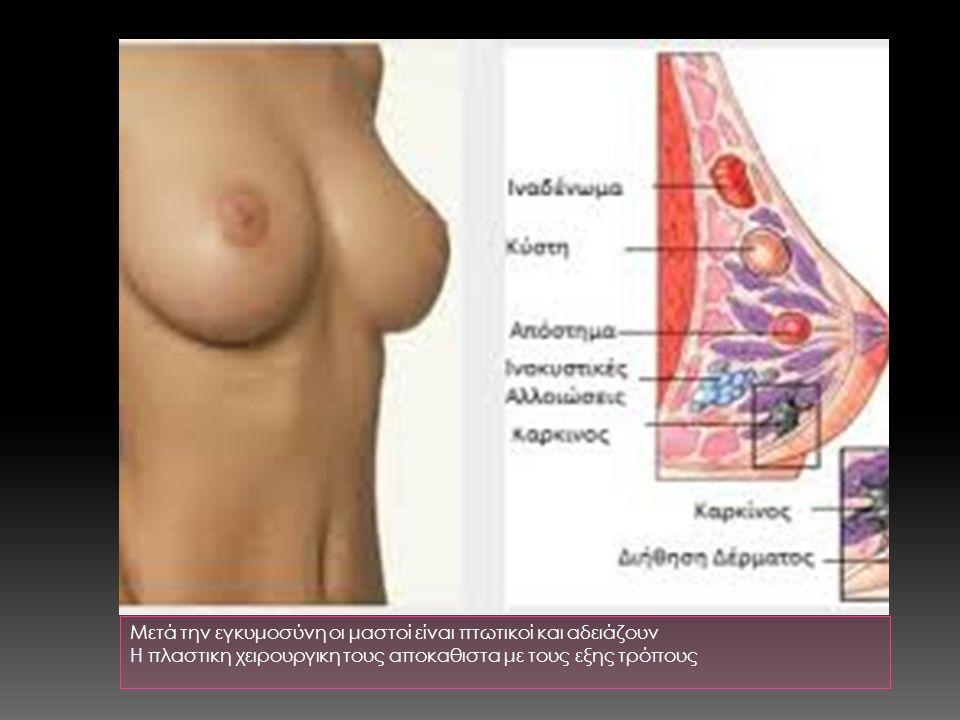 Μετά την εγκυμοσύνη οι μαστοί είναι πτωτικοί και αδειάζουν Η πλαστικη χειρουργικη τους αποκαθιστα με τους εξης τρόπους