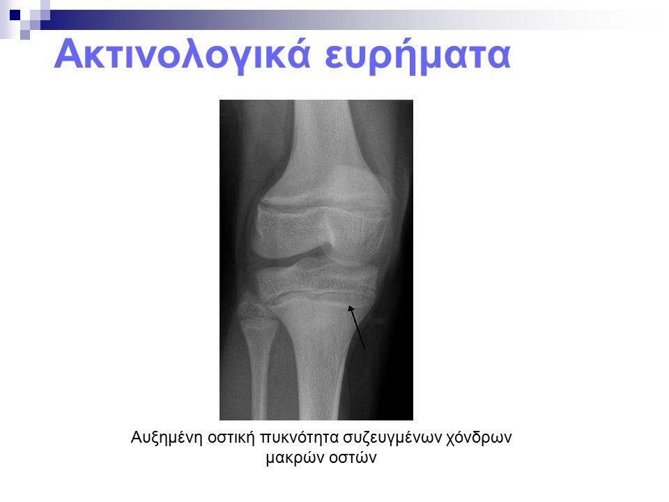 Ακτινολογικά ευρήματα Αυξημένη οστική πυκνότητα συζευγμένων χόνδρων μακρών οστών