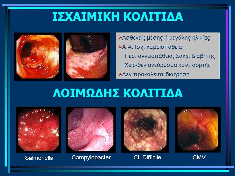 ΙΣΧΑΙΜΙΚΗ ΚΟΛΙΤΙΔΑ ΛΟΙΜΩΔΗΣ ΚΟΛΙΤΙΔΑ Salmonella CampylobacterCl. DifficileCMV  Ασθενείς μέσης ή μεγάλης ηλικίας  Α.Α. Ισχ. καρδιοπάθεια, Περ. αγγειο
