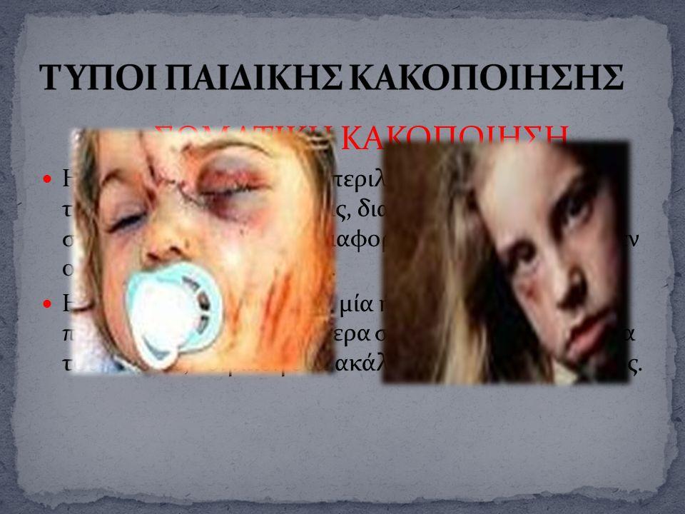 1. ΣΩΜΑΤΙΚΗ ΚΑΚΟΠΟΙΗΣΗ Η σωματική κακοποίηση περιλαμβάνει κάθε είδους τραυματισμούς ή κακώσεις, διαφορετικής σοβαρότητας και συχνά διαφορετικών ηλικιώ