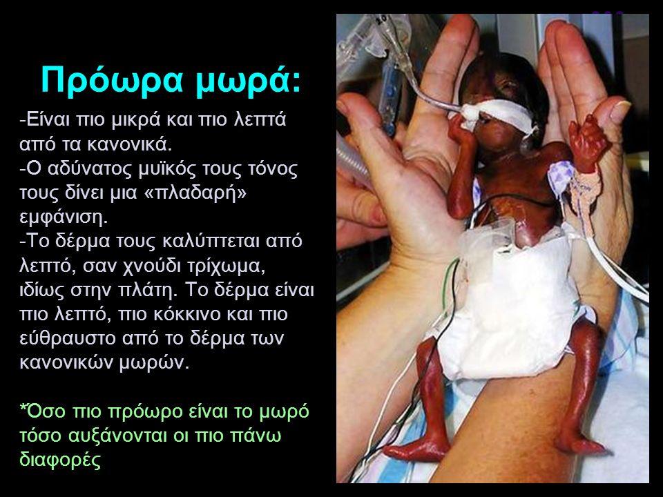 Πρόωρα μωρά: -Είναι πιο μικρά και πιο λεπτά από τα κανονικά. -Ο αδύνατος μυϊκός τους τόνος τους δίνει μια «πλαδαρή» εμφάνιση. -Το δέρμα τους καλύπτετα