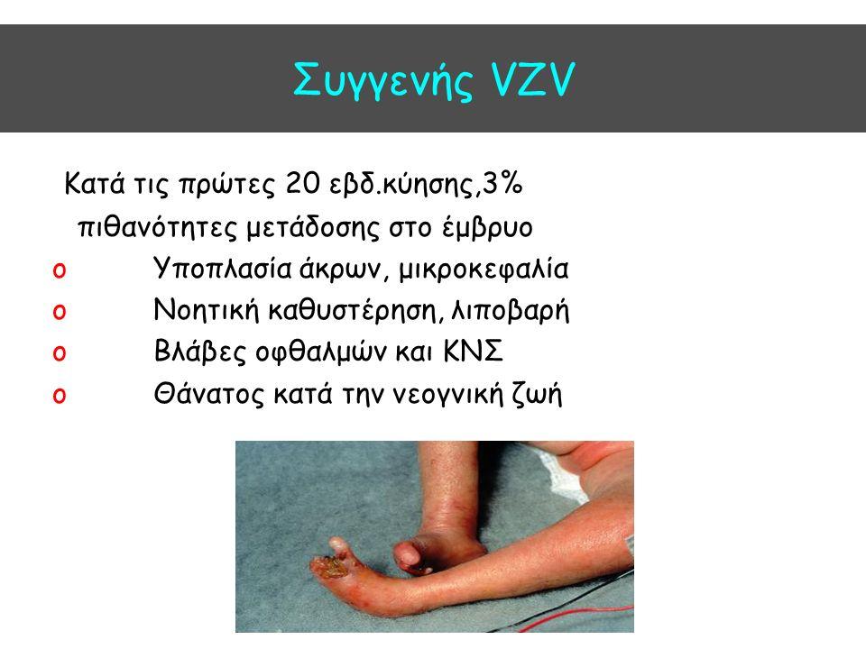 Συγγενής VZV Kατά τις πρώτες 20 εβδ.κύησης,3% πιθανότητες μετάδοσης στο έμβρυο o Υποπλασία άκρων, μικροκεφαλία o Νοητική καθυστέρηση, λιποβαρή o Βλάβες οφθαλμών και ΚΝΣ o Θάνατος κατά την νεογνική ζωή