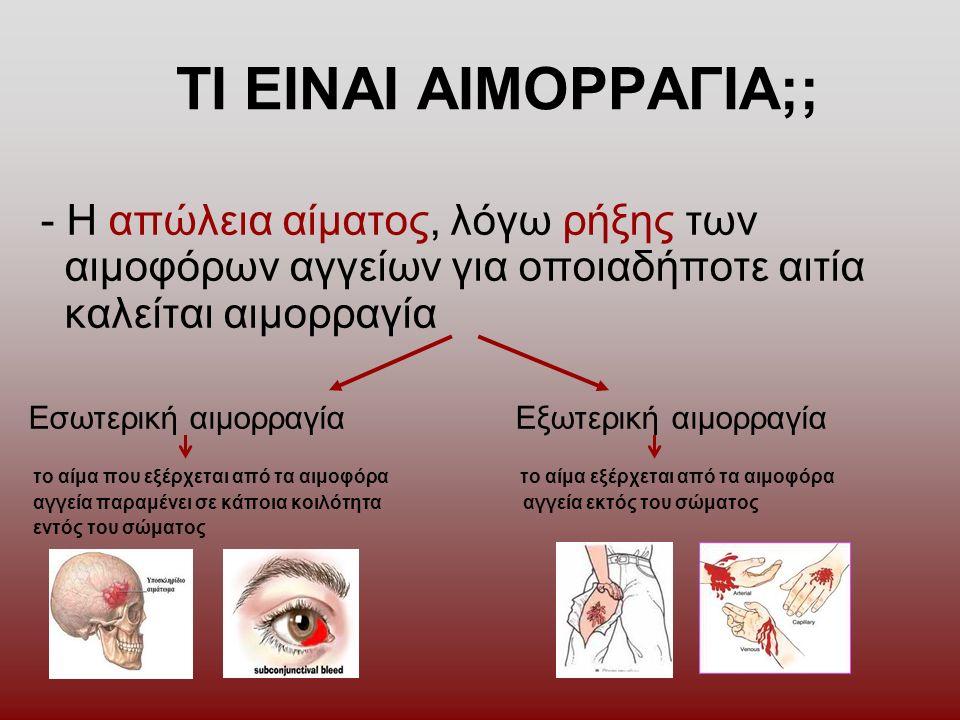 ΤΙ ΕΙΝΑΙ ΑΙΜΟΡΡΑΓΙΑ;; - Η απώλεια αίματος, λόγω ρήξης των αιμοφόρων αγγείων για οποιαδήποτε αιτία καλείται αιμορραγία Εσωτερική αιμορραγία Εξωτερική αιμορραγία το αίμα που εξέρχεται από τα αιμοφόρα το αίμα εξέρχεται από τα αιμοφόρα αγγεία παραμένει σε κάποια κοιλότητα αγγεία εκτός του σώματος εντός του σώματος
