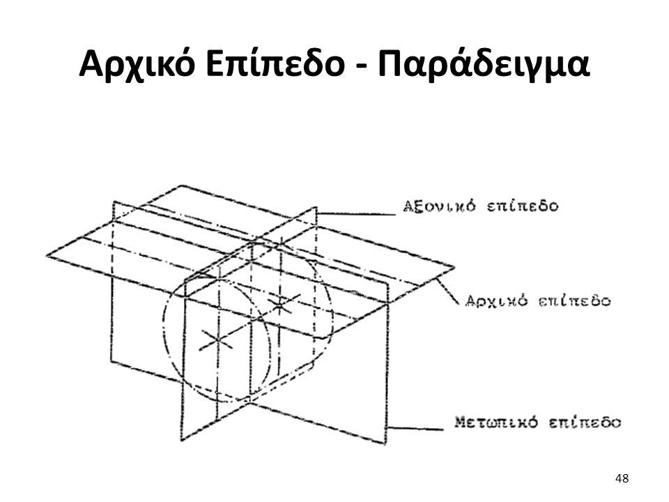 Αρχικό Επίπεδο - Παράδειγμα 48