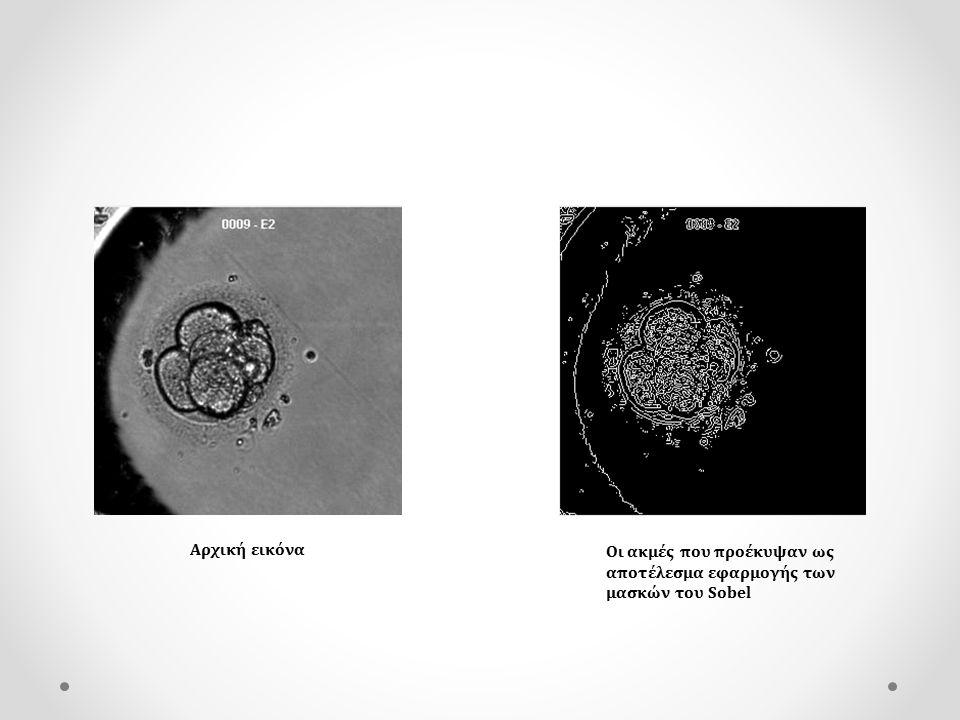 Εντοπισμός του κυττάρου και εκτίμηση των ορθογώνιων διαστάσεών του σε εικονοστοιχεία Εύρεση λεπτομερών ακμών της εικόνας με την μάσκα του Sobel και χαμηλή τιμή κατωφλίωσης.