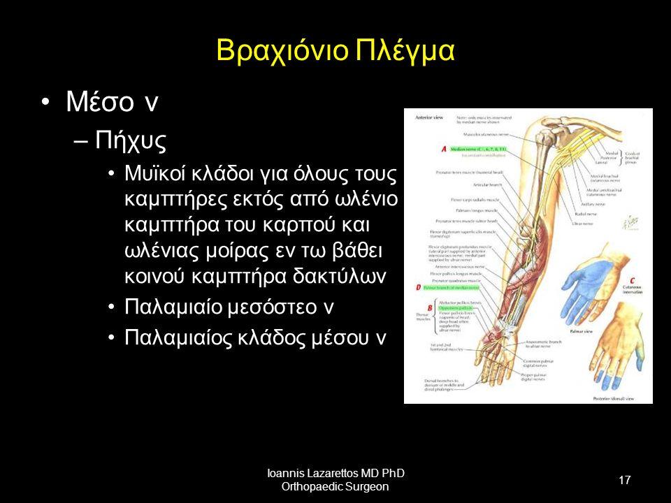 Βραχιόνιο Πλέγμα Μέσο ν –Πήχυς Μυϊκοί κλάδοι για όλους τους καμπτήρες εκτός από ωλένιο καμπτήρα του καρπού και ωλένιας μοίρας εν τω βάθει κοινού καμπτήρα δακτύλων Παλαμιαίο μεσόστεο ν Παλαμιαίος κλάδος μέσου ν Ioannis Lazarettos MD PhD Orthopaedic Surgeon 17