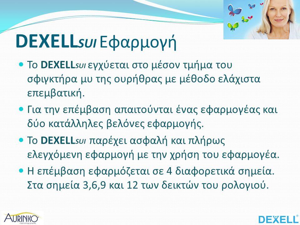 DEXELL SUI Εφαρμογή Το DEXELL SUI εγχύεται στο μέσον τμήμα του σφιγκτήρα μυ της ουρήθρας με μέθοδο ελάχιστα επεμβατική.