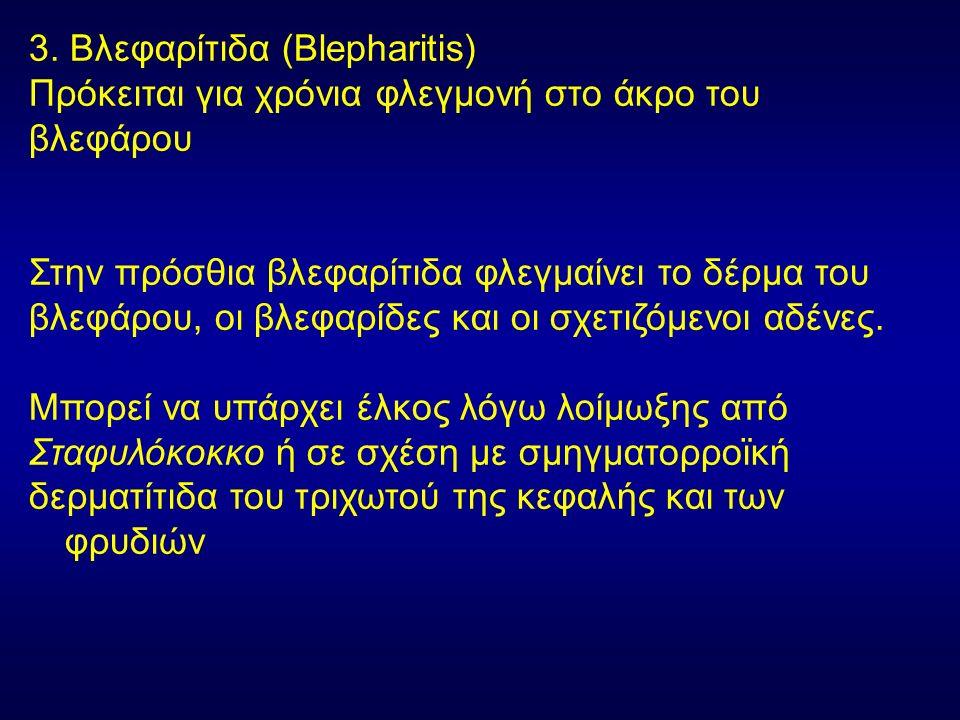 3. Βλεφαρίτιδα (Blepharitis) Πρόκειται για χρόνια φλεγμονή στο άκρο του βλεφάρου Στην πρόσθια βλεφαρίτιδα φλεγμαίνει το δέρμα του βλεφάρου, οι βλεφαρί