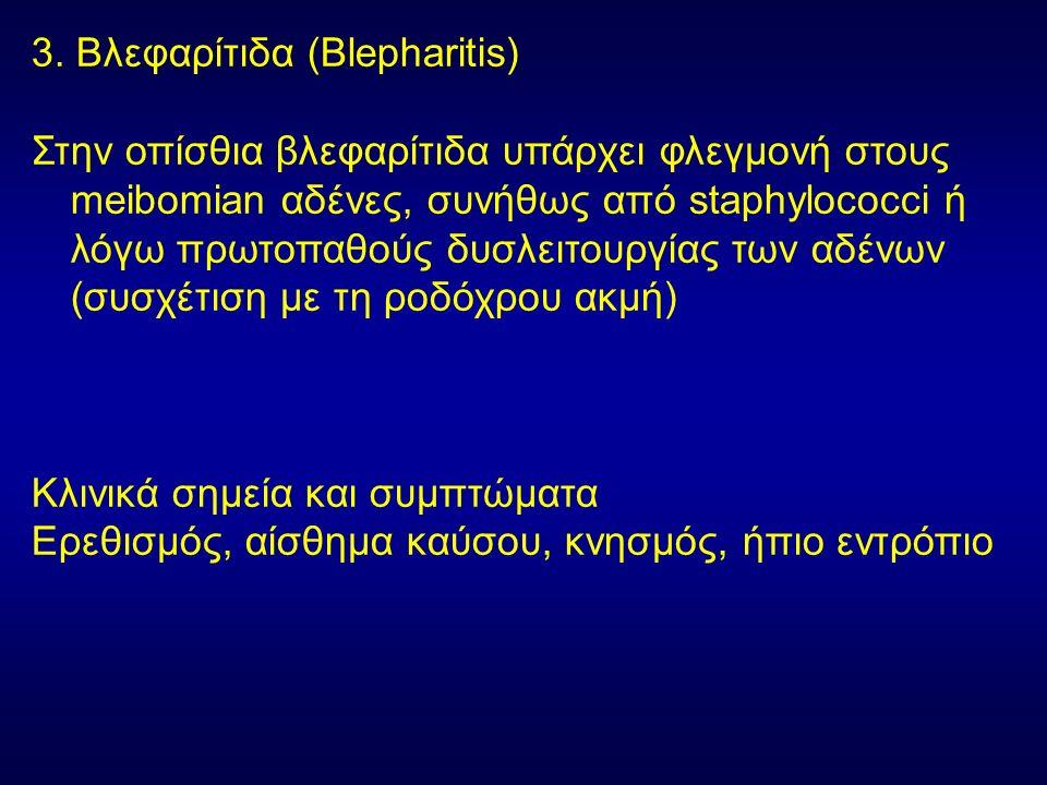 3. Βλεφαρίτιδα (Blepharitis) Στην οπίσθια βλεφαρίτιδα υπάρχει φλεγμονή στους meibomian αδένες, συνήθως από staphylococci ή λόγω πρωτοπαθούς δυσλειτουρ