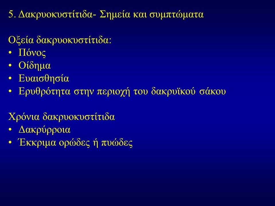 5. Δακρυοκυστίτιδα- Σημεία και συμπτώματα Οξεία δακρυοκυστίτιδα: Πόνος Οίδημα Ευαισθησία Ερυθρότητα στην περιοχή του δακρυϊκού σάκου Χρόνια δακρυοκυστ