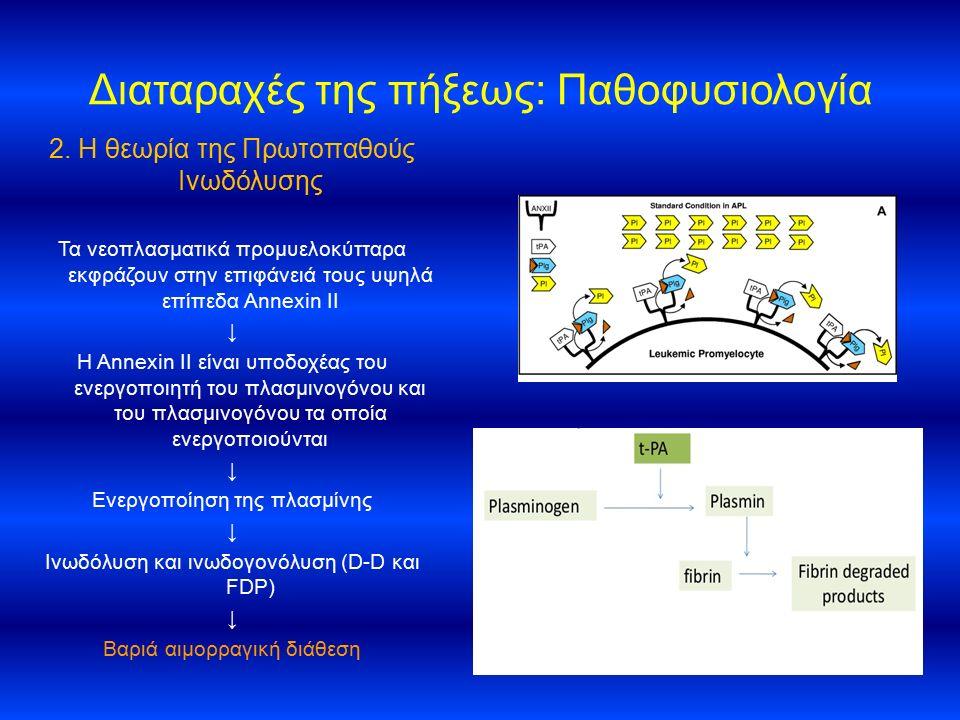 Διαταραχές της πήξεως: Παθοφυσιολογία 2. Η θεωρία της Πρωτοπαθούς Ινωδόλυσης Τα νεοπλασματικά προμυελοκύτταρα εκφράζουν στην επιφάνειά τους υψηλά επίπ