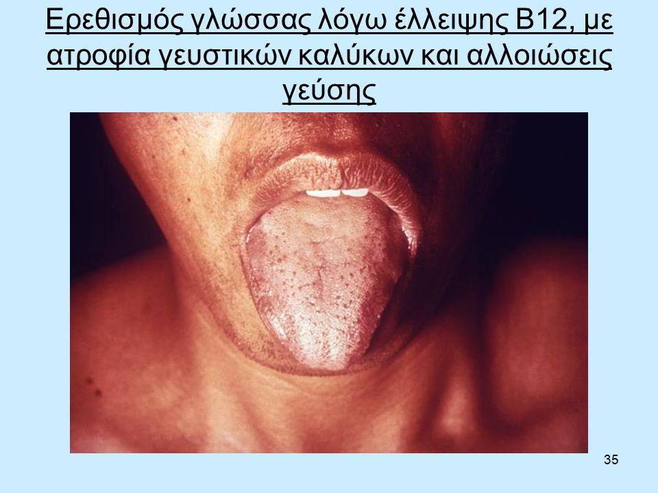 35 Ερεθισμός γλώσσας λόγω έλλειψης Β12, με ατροφία γευστικών καλύκων και αλλοιώσεις γεύσης