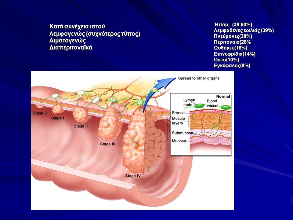 Κατά συνέχεια ιστού Λεμφογενώς (συχνότερος τύπος) Λεμφογενώς (συχνότερος τύπος)Αιματογενώς Διαπεριτοναϊκά Διαπεριτοναϊκά Ήπαρ (38-60%) Λεμφαδένες κοιλ
