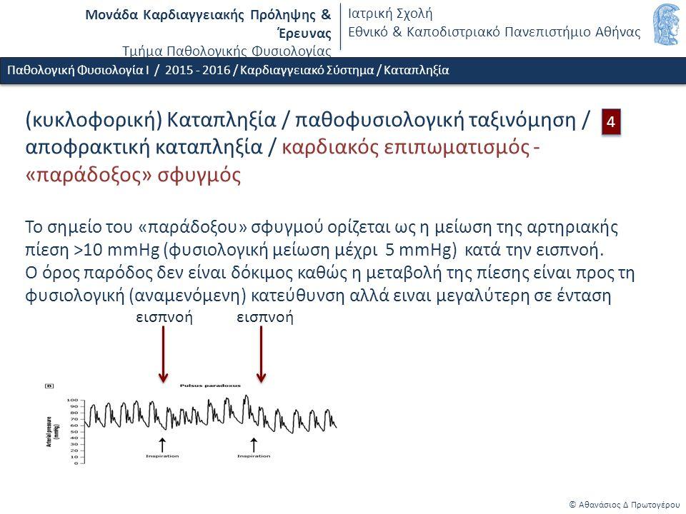 Μονάδα Καρδιαγγειακής Πρόληψης & Έρευνας Τμήμα Παθολογικής Φυσιολογίας Ιατρική Σχολή Εθνικό & Καποδιστριακό Πανεπιστήμιο Αθήνας © Αθανάσιος Δ Πρωτογέρου Παθολογική Φυσιολογία Ι / 2015 - 2016 / Καρδιαγγειακό Σύστημα / Καταπληξία 4 4 εισπνοή εισπνοή (κυκλοφορική) Καταπληξία / παθοφυσιολογική ταξινόμηση / αποφρακτική καταπληξία / καρδιακός επιπωματισμός - «παράδοξος» σφυγμός Το σημείο του «παράδοξου» σφυγμού ορίζεται ως η μείωση της αρτηριακής πίεση >10 mmHg (φυσιολογική μείωση μέχρι 5 mmHg) κατά την εισπνοή.
