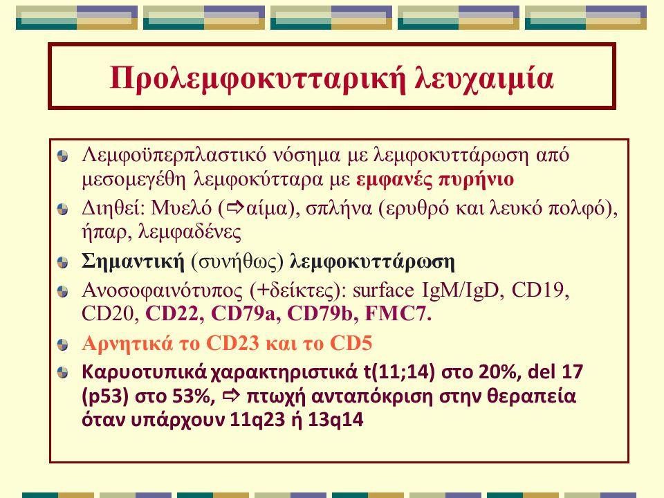 Προλεμφοκυτταρική λευχαιμία Λεμφοϋπερπλαστικό νόσημα με λεμφοκυττάρωση από μεσομεγέθη λεμφοκύτταρα με εμφανές πυρήνιο Διηθεί: Μυελό (  αίμα), σπλήνα (ερυθρό και λευκό πολφό), ήπαρ, λεμφαδένες Σημαντική (συνήθως) λεμφοκυττάρωση Ανοσοφαινότυπος (+δείκτες): surface IgM/IgD, CD19, CD20, CD22, CD79a, CD79b, FMC7.