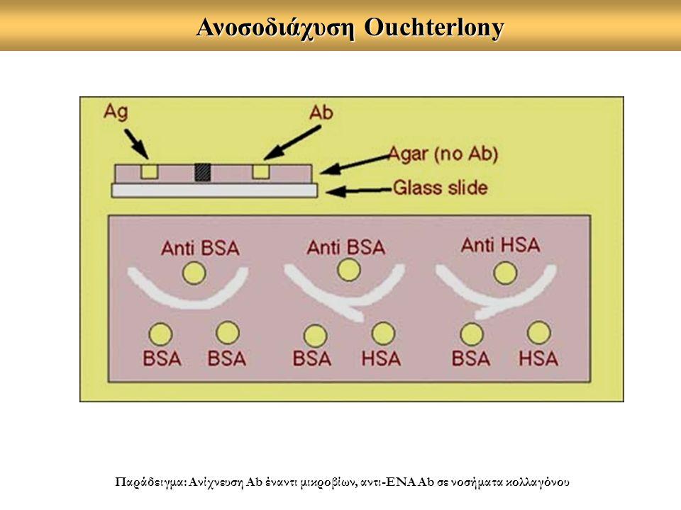 Ανοσοδιάχυση Ouchterlony Ανοσοδιάχυση Ouchterlony Παράδειγμα: Ανίχνευση Ab έναντι μικροβίων, αντι-ΕΝΑ Ab σε νοσήματα κολλαγόνου