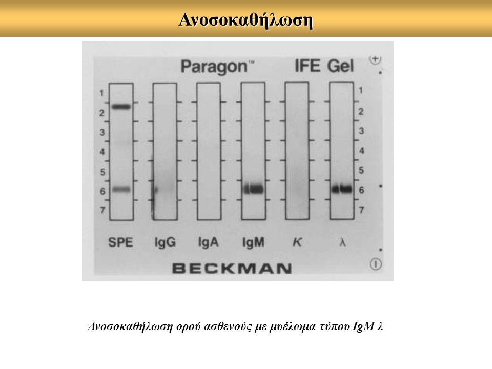 Ανοσοκαθήλωση Ανοσοκαθήλωση ορού ασθενούς με μυέλωμα τύπου IgM λ
