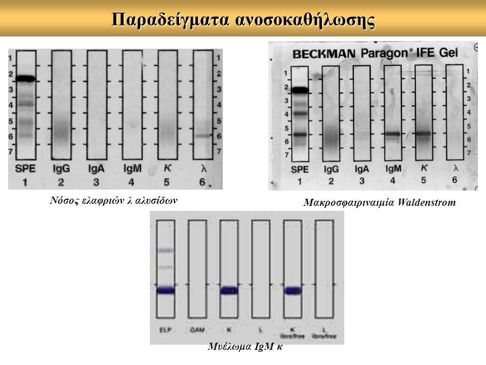Παραδείγματα ανοσοκαθήλωσης Μακροσφαιριναιμία Waldenstrom Νόσος ελαφριών λ αλυσίδων Μυέλωμα ΙgM κ