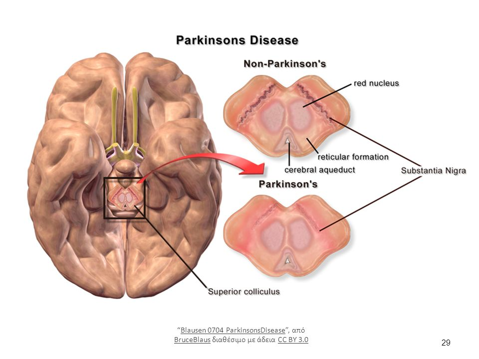 29 Blausen 0704 ParkinsonsDisease , από BruceBlaus διαθέσιμο με άδεια CC BY 3.0Blausen 0704 ParkinsonsDisease BruceBlausCC BY 3.0