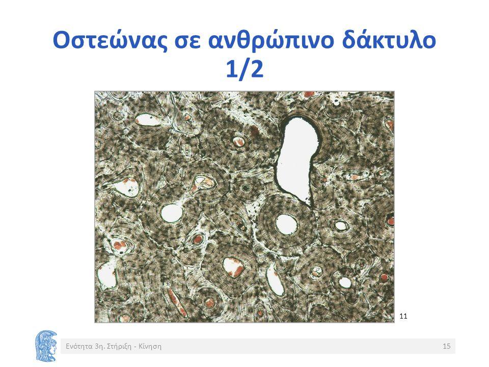 Οστεώνας σε ανθρώπινο δάκτυλο 1/2 Ενότητα 3η. Στήριξη - Κίνηση15 11