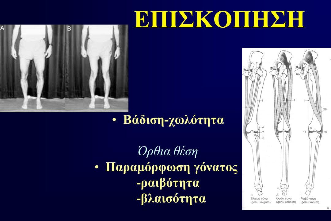 ΕΠΙΣΚΟΠΗΣΗ Βάδιση-χωλότητα Όρθια θέση Παραμόρφωση γόνατος -ραιβότητα -βλαισότητα