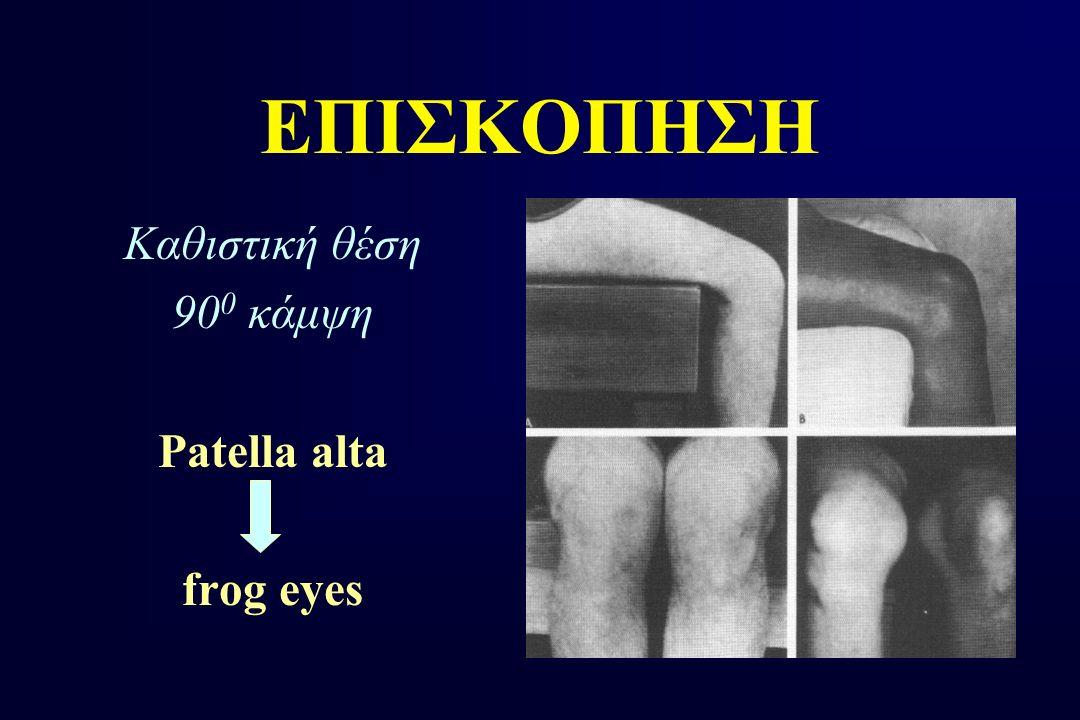 ΕΠΙΣΚΟΠΗΣΗ Καθιστική θέση 90 0 κάμψη Patella alta frog eyes
