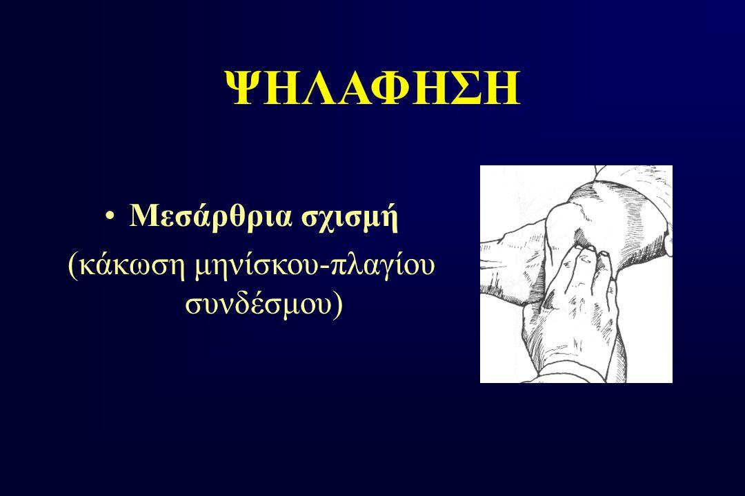 Μεσάρθρια σχισμή (κάκωση μηνίσκου-πλαγίου συνδέσμου) ΨΗΛΑΦΗΣΗ