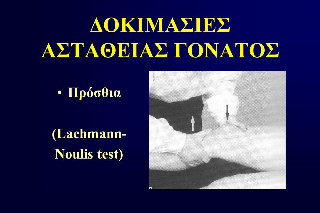 ΔΟΚΙΜΑΣΙΕΣ ΑΣΤΑΘΕΙΑΣ ΓΟΝΑΤΟΣ Πρόσθια (Lachmann- Noulis test)