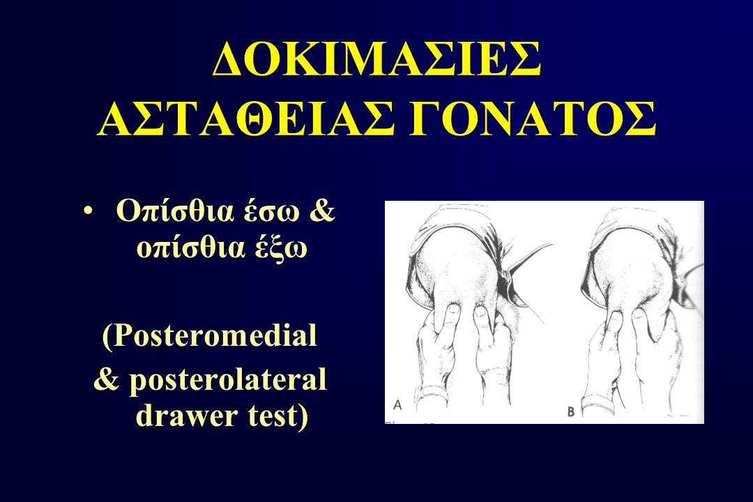 ΔΟΚΙΜΑΣΙΕΣ ΑΣΤΑΘΕΙΑΣ ΓΟΝΑΤΟΣ Οπίσθια έσω & οπίσθια έξω (Posteromedial & posterolateral drawer test)