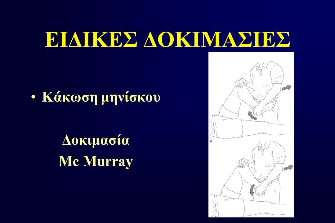 ΕΙΔΙΚΕΣ ΔΟΚΙΜΑΣΙΕΣ Κάκωση μηνίσκου Δοκιμασία Mc Murray