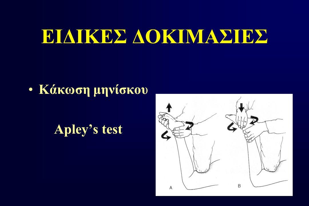 ΕΙΔΙΚΕΣ ΔΟΚΙΜΑΣΙΕΣ Κάκωση μηνίσκου Apley's test