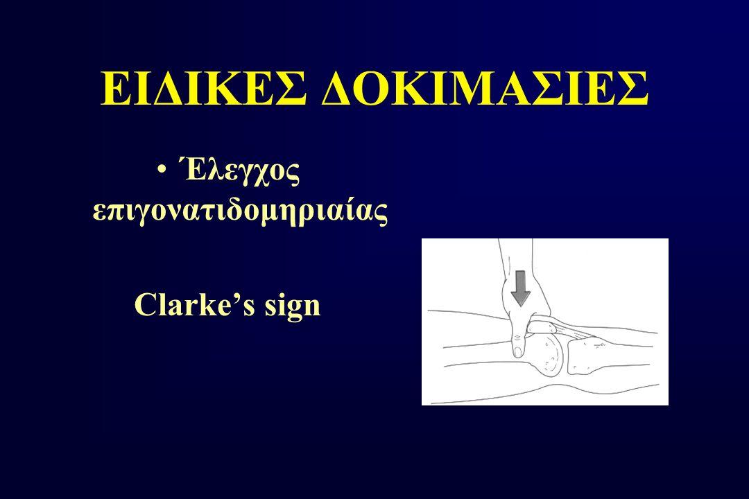 ΕΙΔΙΚΕΣ ΔΟΚΙΜΑΣΙΕΣ Έλεγχος επιγονατιδομηριαίας Clarke's sign