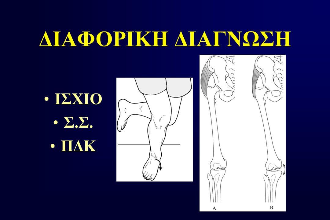 ΔΙΑΦΟΡΙΚΗ ΔΙΑΓΝΩΣΗ ΙΣΧΙΟ Σ.Σ. ΠΔΚ