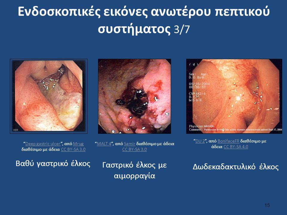 Ενδοσκοπικές εικόνες ανωτέρου πεπτικού συστήματος 3/7 15 Δωδεκαδακτυλικό έλκος Γαστρικό έλκος με αιμορραγία Βαθύ γαστρικό έλκος MALT 4 , από Samir διαθέσιμο με άδεια CC BY-SA 3.0MALT 4Samir CC BY-SA 3.0 Deep gastric ulcer , από Mrug διαθέσιμο με άδεια CC BY-SA 3.0Deep gastric ulcerMrugCC BY-SA 3.0 DU 2 , από BonifaceFR διαθέσιμο με άδεια CC BY-SA 4.0DU 2BonifaceFRCC BY-SA 4.0