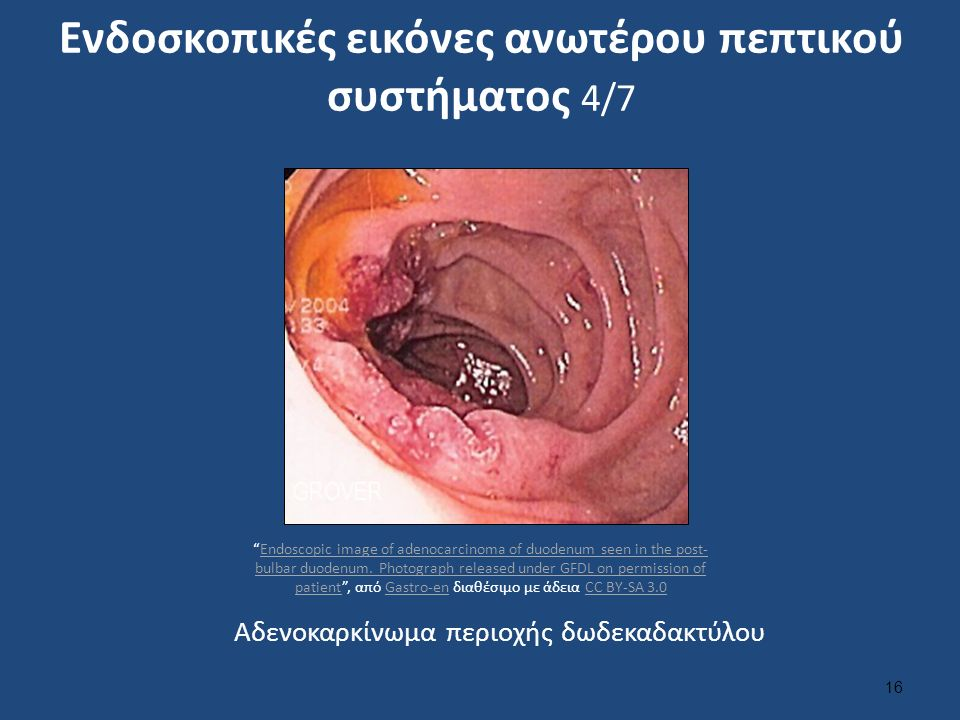 Ενδοσκοπικές εικόνες ανωτέρου πεπτικού συστήματος 4/7 16 Αδενοκαρκίνωμα περιοχής δωδεκαδακτύλου Endoscopic image of adenocarcinoma of duodenum seen in the post- bulbar duodenum.