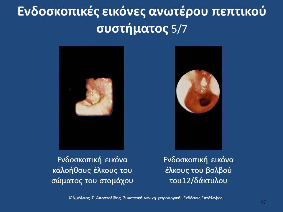 Ενδοσκοπικές εικόνες ανωτέρου πεπτικού συστήματος 5/7 17 Ενδοσκοπική εικόνα καλοήθους έλκους του σώματος του στομάχου Ενδοσκοπική εικόνα έλκους του βολβού του12/δάκτυλου ©Νικόλαος Σ.